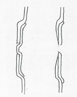 Belly Band - Drawing - Grinding through bandage.jpg